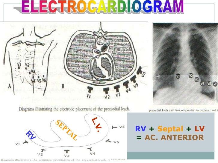 Ecg Update Basic Cardiology