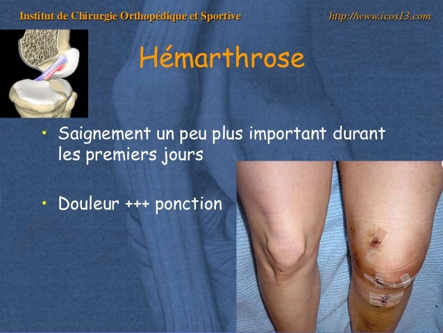 hémarthrose genou traitement