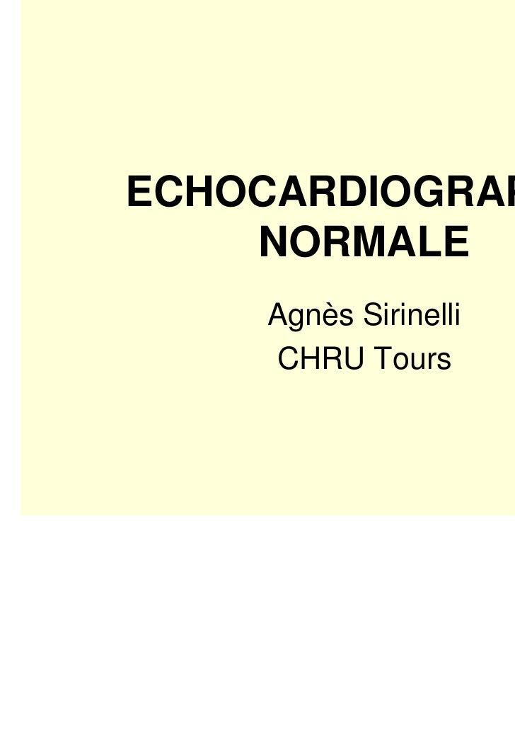 ECHOCARDIOGRAPHIE    NORMALE     Agnès Sirinelli     CHRU Tours