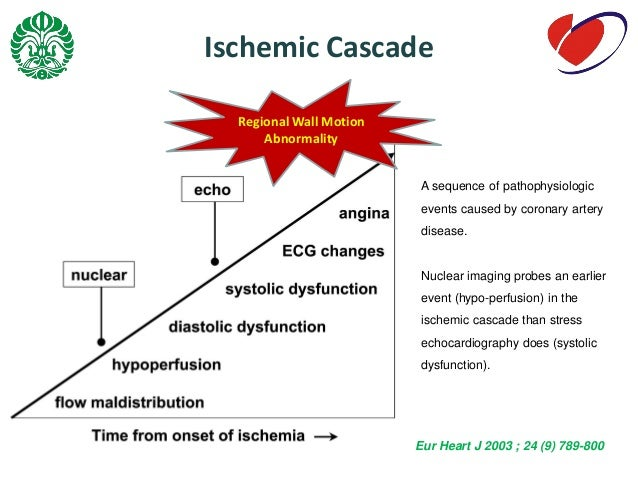 ischemic cascade From wikipedia, the free encyclopedia the ischemic (ischaemic) cascade is a series of biochemical reactions that take place in the brain and other aerobic tissues after seconds to minutes.