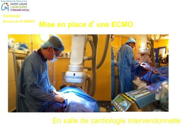 Cardiologie Service du Pr HENRY Sabrina BenMesbah: IDE Louis Modestin : IDE Mise en place d'une ECMO En salle de cardiolog...