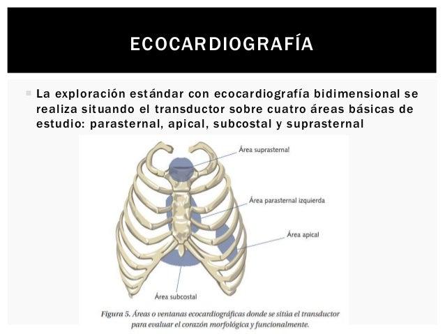 ECOCARDIOGRAFÍA  La exploración estándar con ecocardiografía bidimensional se realiza situando el transductor sobre cuatr...