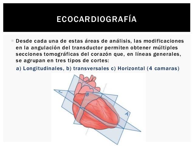 ECOCARDIOGRAFÍA  Desde cada una de estas áreas de análisis, las modificaciones en la angulación del transductor permiten ...