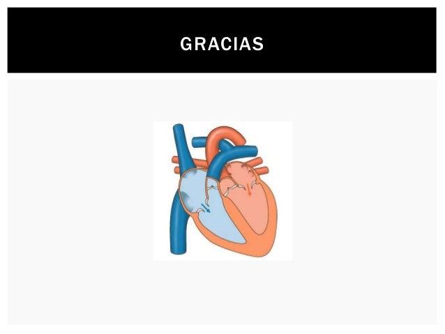 Ecocardiografía de estrés - Dr. Bosio