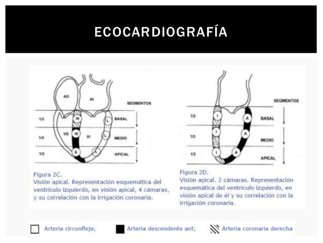 ECO ESTRÉS          La ecocardiografía de estrés es una forma ampliamente usada para evaluar pacientes con enfermedad...