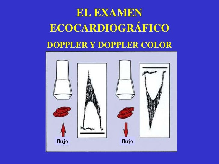 PLANOS ECOCARDIOGRAFICOS<br />SUPRAESTERNAL<br />PARAESTERNAL<br />APICAL<br />SUBCOSTAL<br />