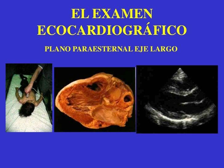 Es el modo de inicio del exámen ecocardiográfico.