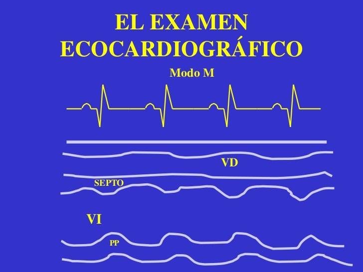 Máxima información con nula invasividad. </li></li></ul><li>EL EXAMEN ECOCARDIOGRÁFICOMODO M<br /><ul><li> El ecocardiogr...