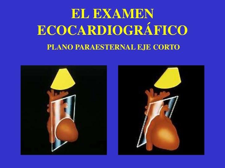 De rutina incluye el estudio de la raiz aórtica y la válvula aórtica asi como el estudio del movimiento del ventriculo iz...