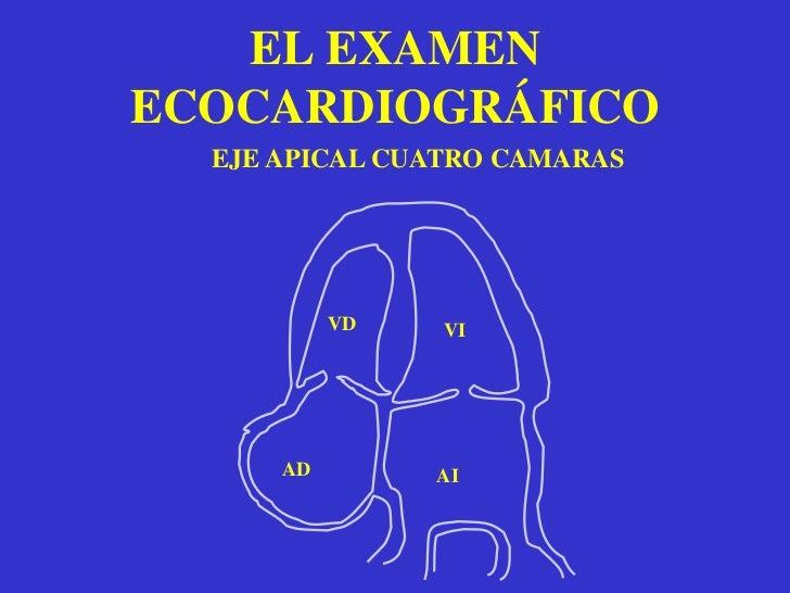 EL EXAMEN ECOCARDIOGRÁFICODOPPLER Y DOPPLER COLOR<br />flujo<br />flujo<br />
