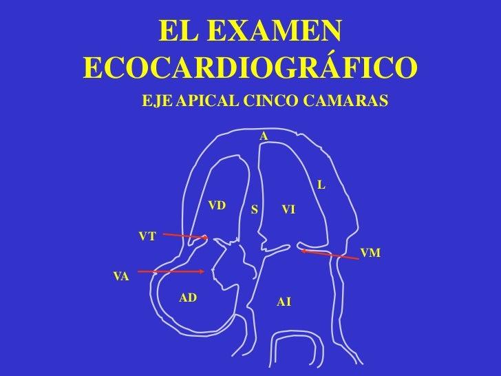 EL EXAMEN ECOCARDIOGRÁFICOUTILIDAD<br /><ul><li>Indicado para el estudio de la morfologia cardiaca.