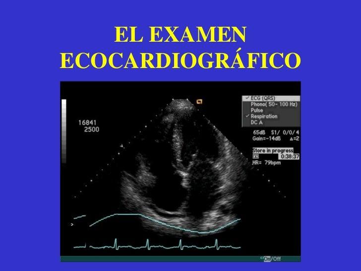 Estudio de la contractilidad cardiaca.