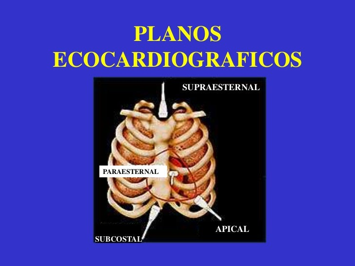 Es reflejado por objetos según su impedancia acústica.</li></li></ul><li>EL EXAMEN ECOCARDIOGRÁFICO<br /><ul><li>  El pa...