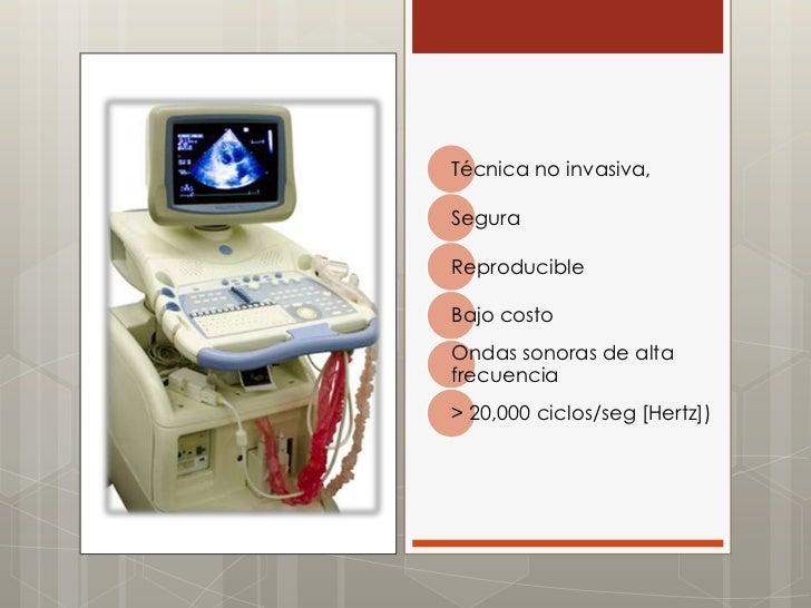 Ecocardiograma Slide 3