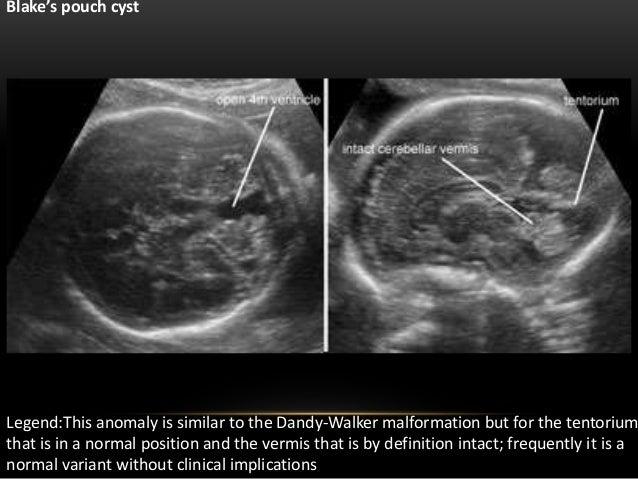 dandy-walker-malformation-ultrasound