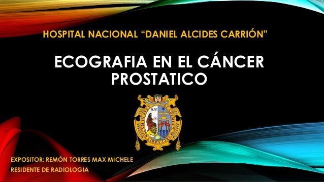 Ecografia cancer prostata