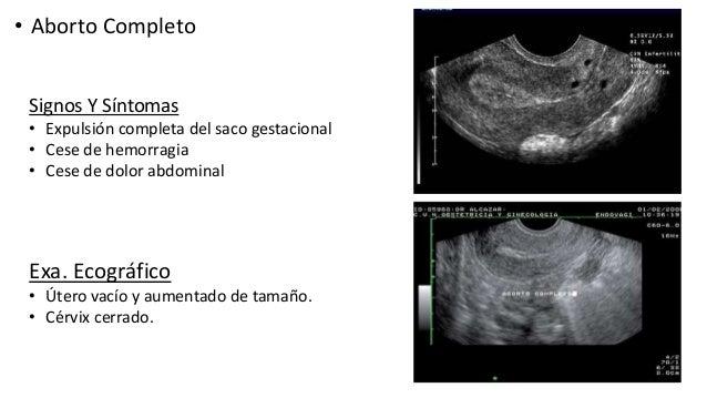 Ecografia del primer trimestre - Aborto primer mes ...