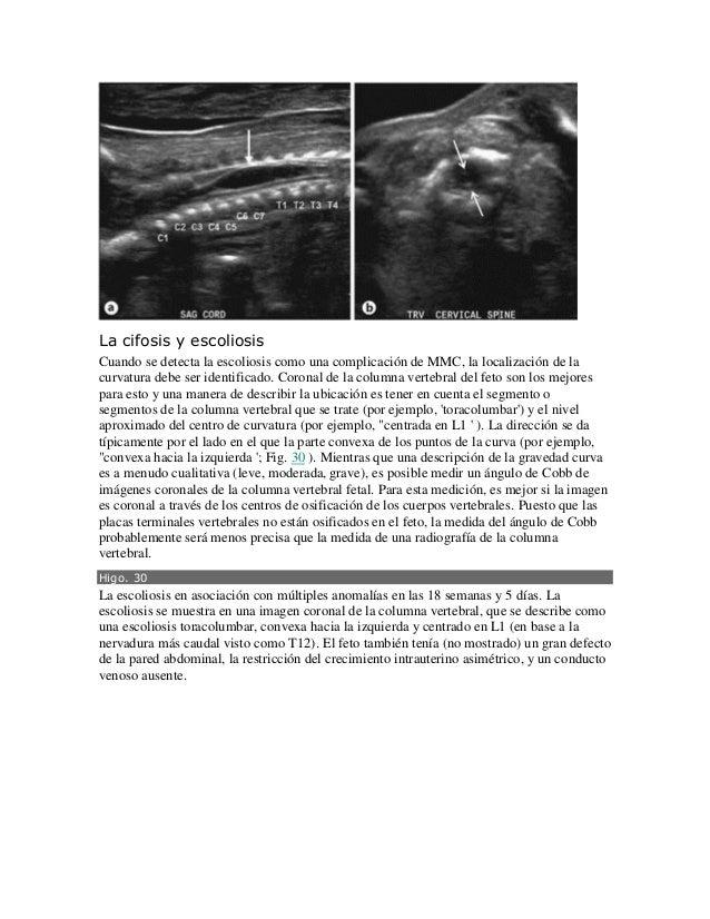 Ecografia fetal en la espina bifida