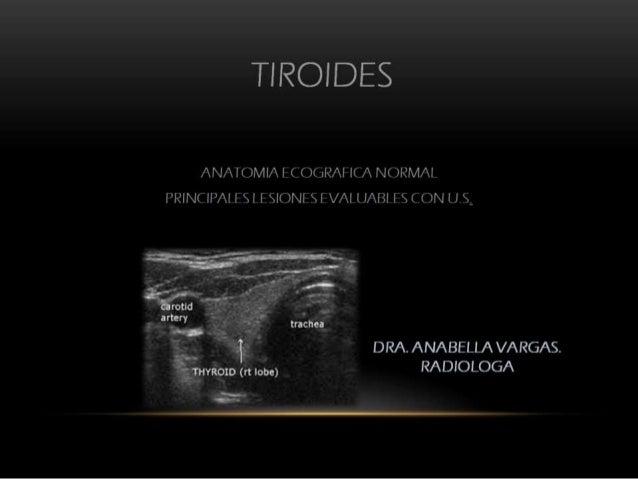DIAGNOSTICO POR IMAGENES DE LA TIROIDES DRA. VARGAS PINEDA