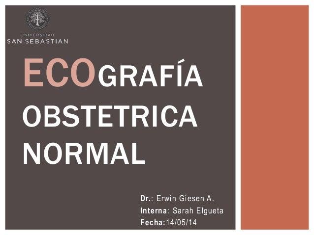 Dr.: Erwin Giesen A. Interna: Sarah Elgueta Fecha:14/05/14 ECOGRAFÍA OBSTETRICA NORMAL