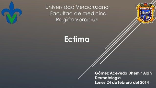Ectima Gómez Acevedo Dhemir Alan Dermatología Lunes 24 de febrero del 2014 Universidad Veracruzana Facultad de medicina Re...