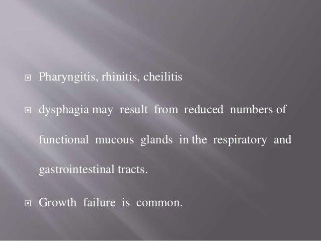  Palmoplantar keratoderma  Hypotrichosis  Nail dystrophy Genetics :  AD pattern,ED 2,  Ch 13q11-q12.1,member of Gap j...