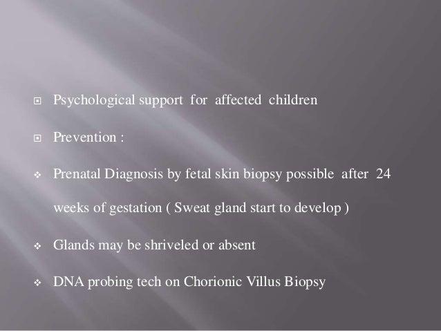  Syndactylyl & Polydactylyl  Mental & Physical Retardation