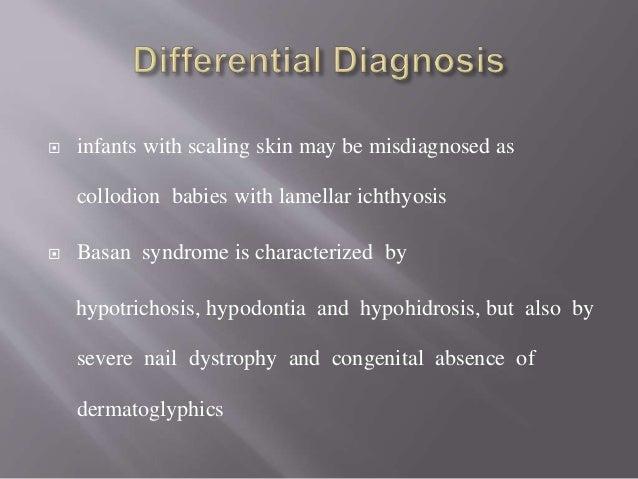  Diagnosis :  Palmoplantar Keratoderma  normal facies, normal sweating & teeth differentiate .  Prognosis:  Life expe...