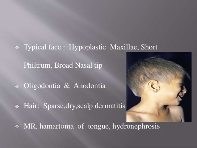 • Abnormal hair shaft showing PILI TORTI & Longitudinal groove ( PILI CANALICULI )