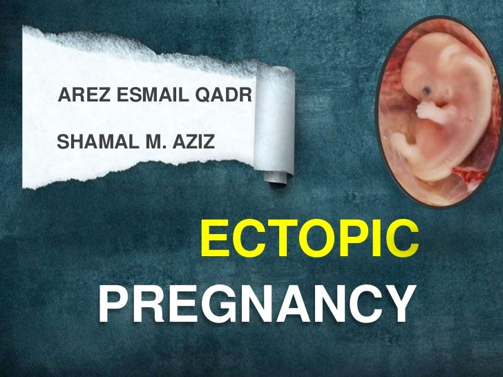 AREZ ESMAIL QADR<br />      SHAMAL M. AZIZ<br />ECTOPIC<br />PREGNANCY<br />