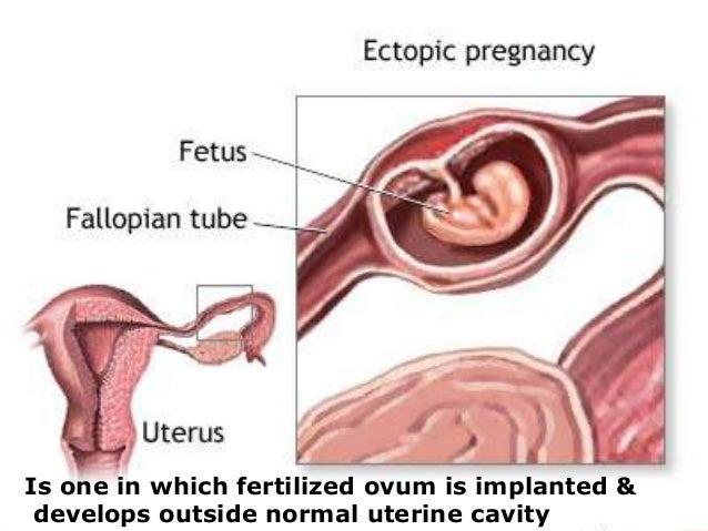 Ectopic pregnancy Slide 3