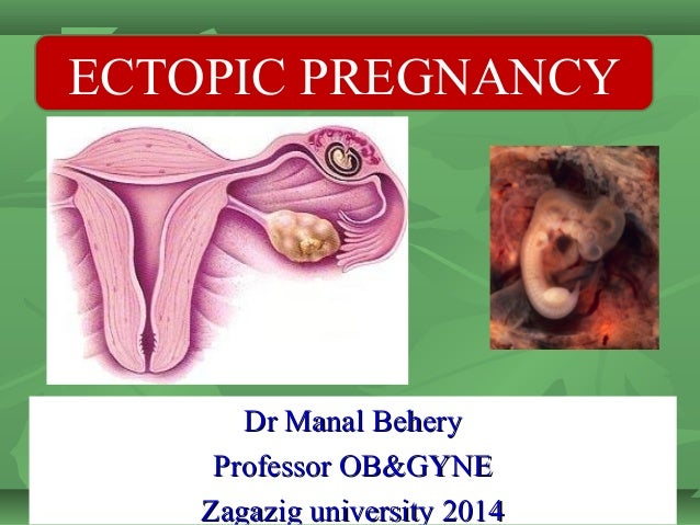 phentermine ectopic pregnancy