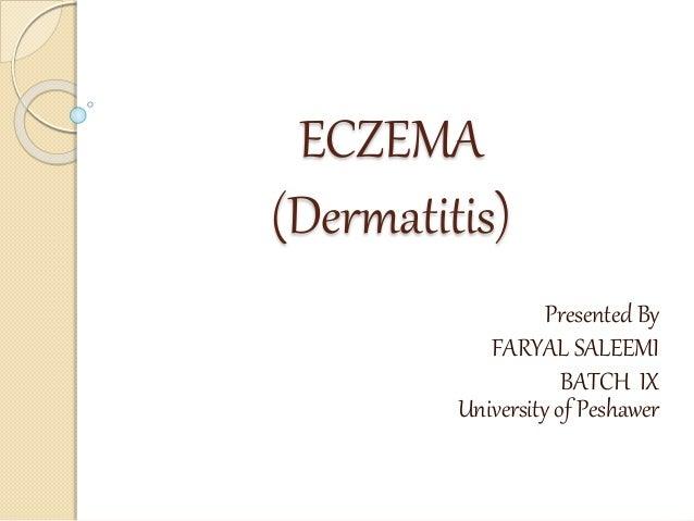 ECZEMA (Dermatitis) Presented By FARYAL SALEEMI BATCH IX University of Peshawer