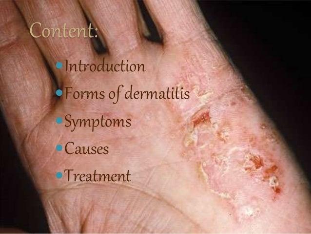 Eczema A Chronic Skin Disease