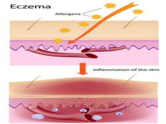 an introduction and background of atopic dermatitis disease Introduction •a paradigm shift in the treatment of atopic dermatitis •a new era in translational research that shows promise in the chronic management of atopic.