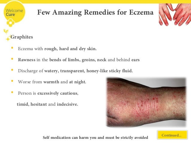 Itching for Recovery? Find soothing relief for Eczema with