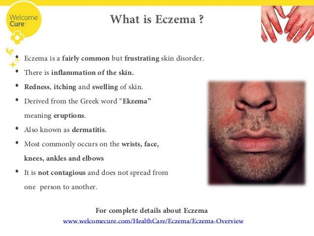 Itching for Recovery? Find soothing relief for Eczema with Homeopathy!
