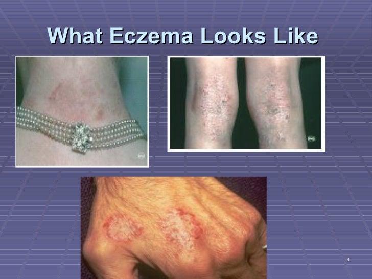 eczema and ginseng. Black Bedroom Furniture Sets. Home Design Ideas