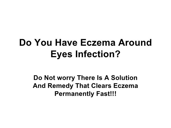 Eczema Around Eyes Cured-How I Did It