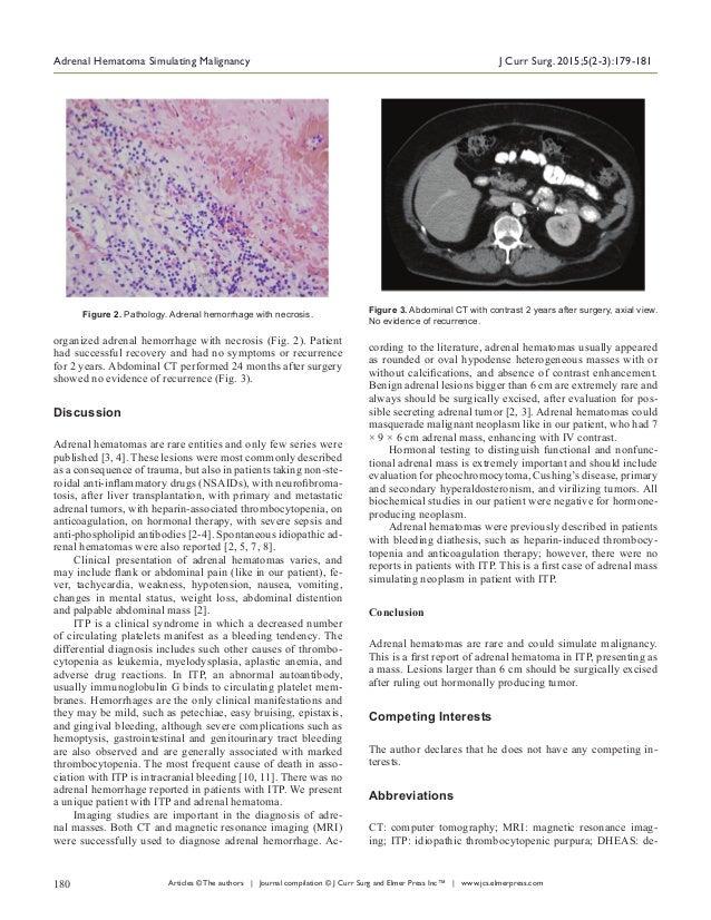 Adrenal Hematoma in ITP Slide 2