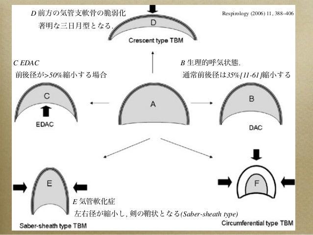 気管軟化症 EDAC Slide 3