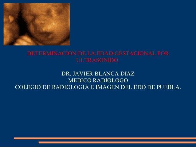 DETERMINACION DE LA EDAD GESTACIONAL POR ULTRASONIDO. DR. JAVIER BLANCA DIAZ MEDICO RADIOLOGO COLEGIO DE RADIOLOGIA E IMAG...