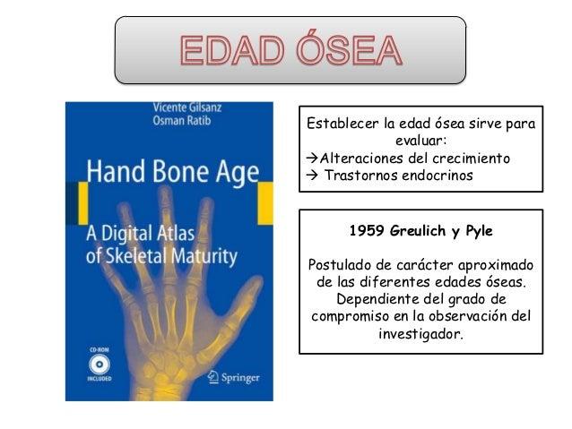 Edad osea Slide 2