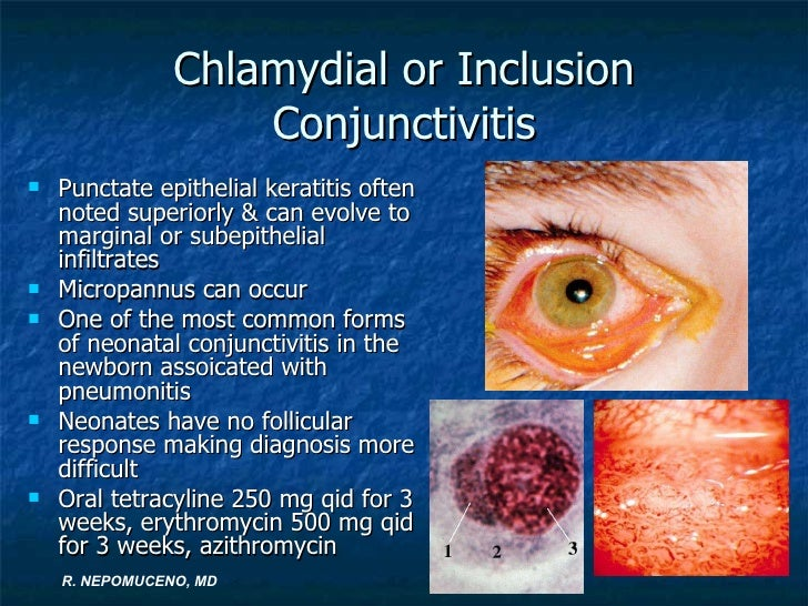 conjunctivitis and people Is it conjunctivitis  what to look out for dogs scratch their eyes more often than people do  is conjunctivitis in dogs contagious.