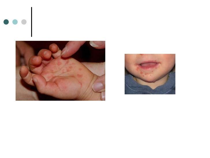 Emergency Dermatology