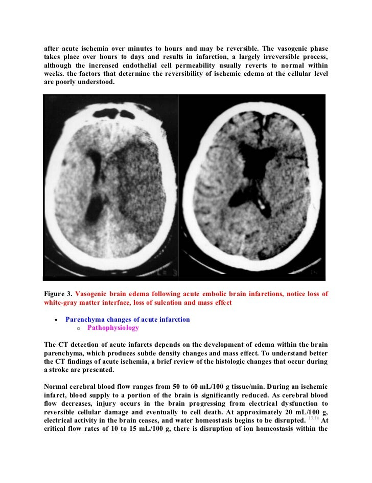 Topic of the month: Radiological pathology of brain edema