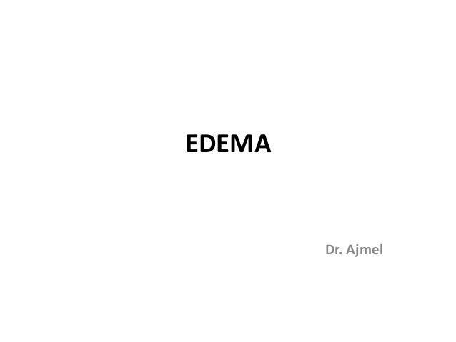 EDEMA Dr. Ajmel