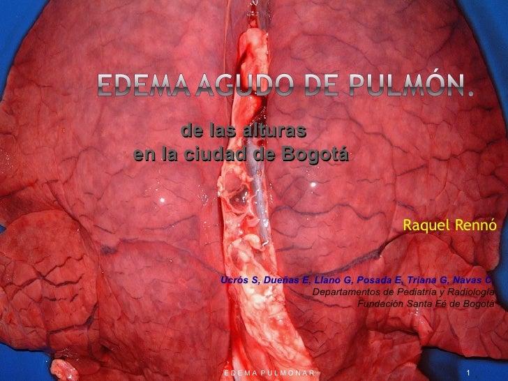 Raquel Rennó E D E M A  P U L M O N A R de las alturas en la ciudad de Bogotá   Ucrós S, Dueñas E, Llano G, Posada E, Tria...