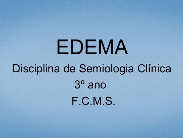EDEMA Disciplina de Semiologia Clínica 3º ano F.C.M.S.