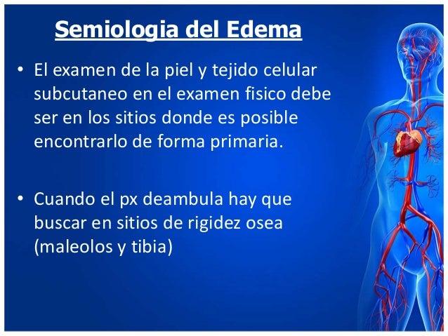 Semiologia del Edema Slide 2